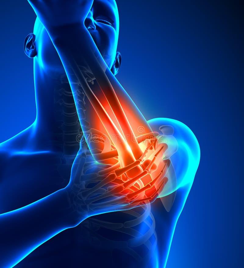 Αρσενικό πόνου αγκώνων - μπροστινή άποψη διανυσματική απεικόνιση