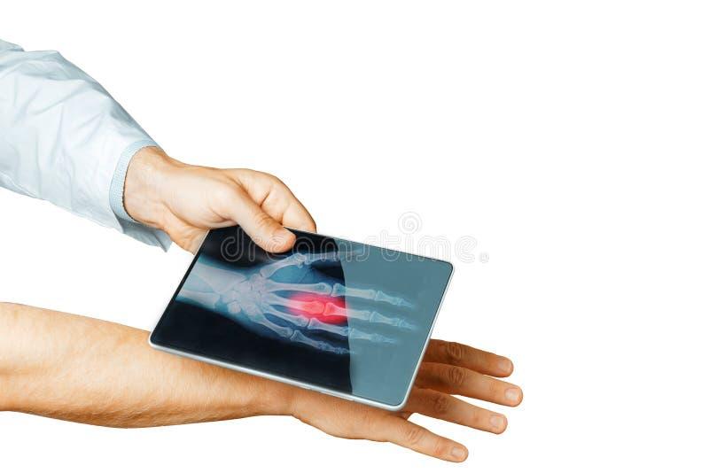 Χέρι γιατρών με το ψηφιακό υπομονετικό χέρι ανιχνεύσεων ταμπλετών, σύγχρονη τεχνολογία ακτίνας X στην ιατρική και απομονωμένο ένν στοκ φωτογραφία με δικαίωμα ελεύθερης χρήσης