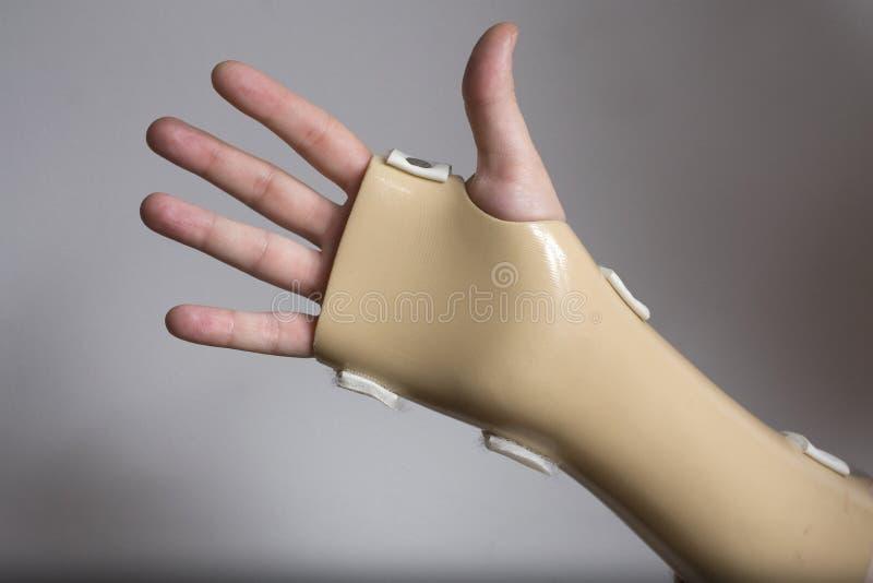 χέρι στηριγμάτων στοκ φωτογραφία με δικαίωμα ελεύθερης χρήσης
