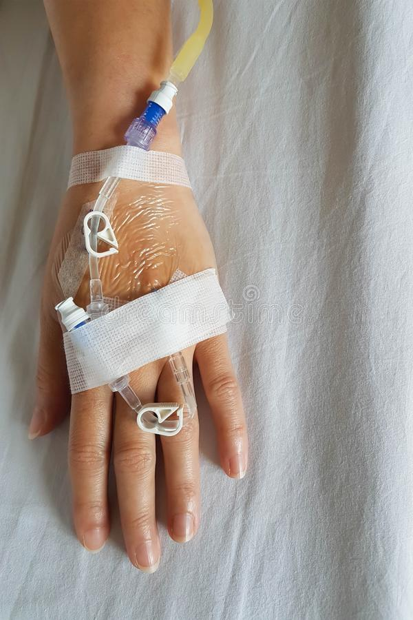 Χέρι του ασθενή με dropper τη βελόνα έγχυσης για την ενδοφλέβια έγχυση στην κινηματογράφηση σε πρώτο πλάνο στοκ εικόνες