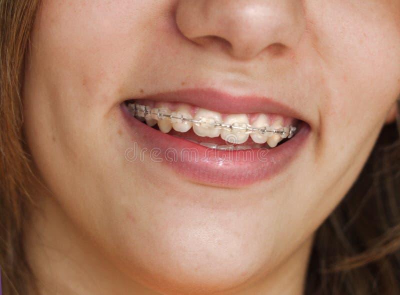 χαμόγελο στηριγμάτων στοκ φωτογραφίες με δικαίωμα ελεύθερης χρήσης