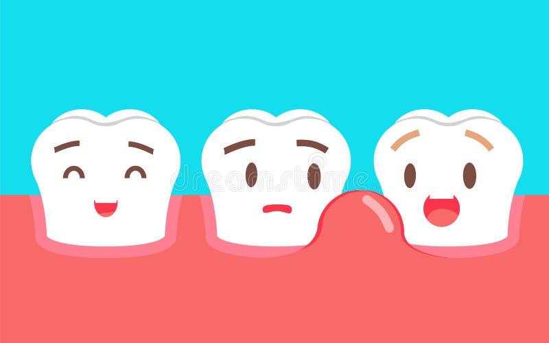 Χαριτωμένος χαρακτήρας δοντιών κινούμενων σχεδίων με το πρόβλημα γόμμας Οδοντική έννοια προσοχής, πρησμένες γόμμες ή περιοδοντική ελεύθερη απεικόνιση δικαιώματος