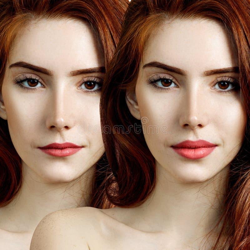 Χείλη νεαρής κοκκινομάλλα πριν και μετά την αύξηση στοκ εικόνες με δικαίωμα ελεύθερης χρήσης