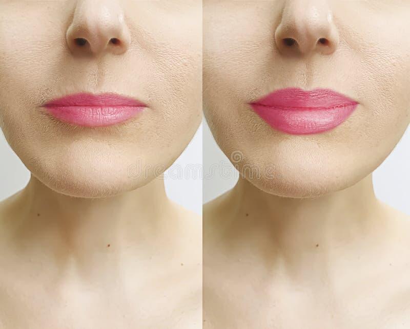 Χείλια γυναικών πριν και μετά από την ενίσχυση όμορφη στοκ φωτογραφία με δικαίωμα ελεύθερης χρήσης