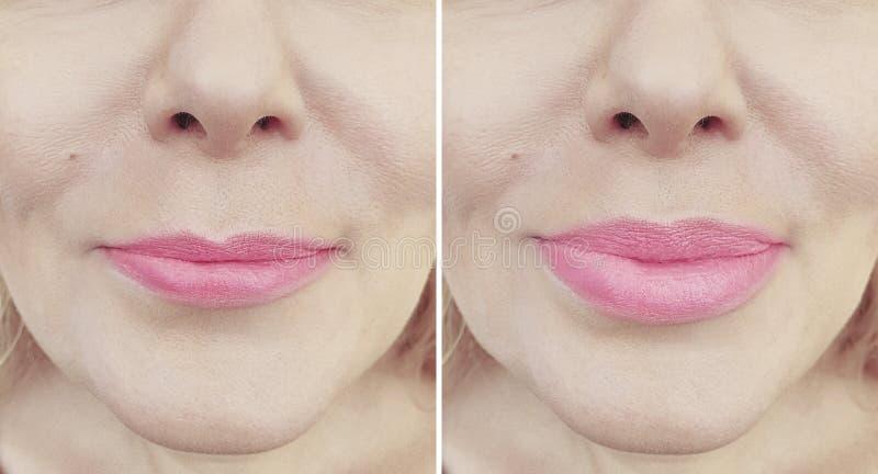 Χείλια κοριτσιών πριν και μετά από την έγχυση διαφοράς αύξησης στοκ φωτογραφίες με δικαίωμα ελεύθερης χρήσης