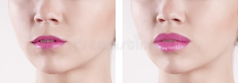 Χείλια πριν και μετά από την αύξηση στοκ φωτογραφία με δικαίωμα ελεύθερης χρήσης