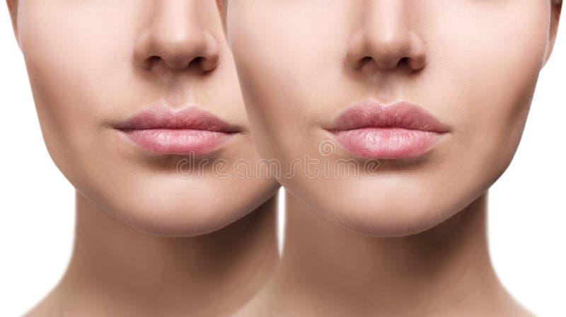 Χείλια της νέας γυναίκας πριν και μετά από την αύξηση στοκ εικόνα με δικαίωμα ελεύθερης χρήσης