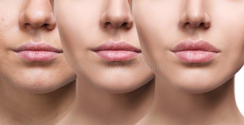 Χείλια της νέας γυναίκας πριν και μετά από την αύξηση στοκ φωτογραφίες με δικαίωμα ελεύθερης χρήσης