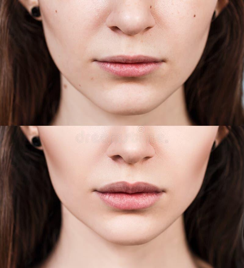 Χείλια της νέας γυναίκας πριν και μετά από την αύξηση στοκ εικόνα