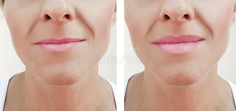 Χειλική αύξηση πριν και μετά από τις διαδικασίες, υλικό πληρώσεως στοκ φωτογραφία