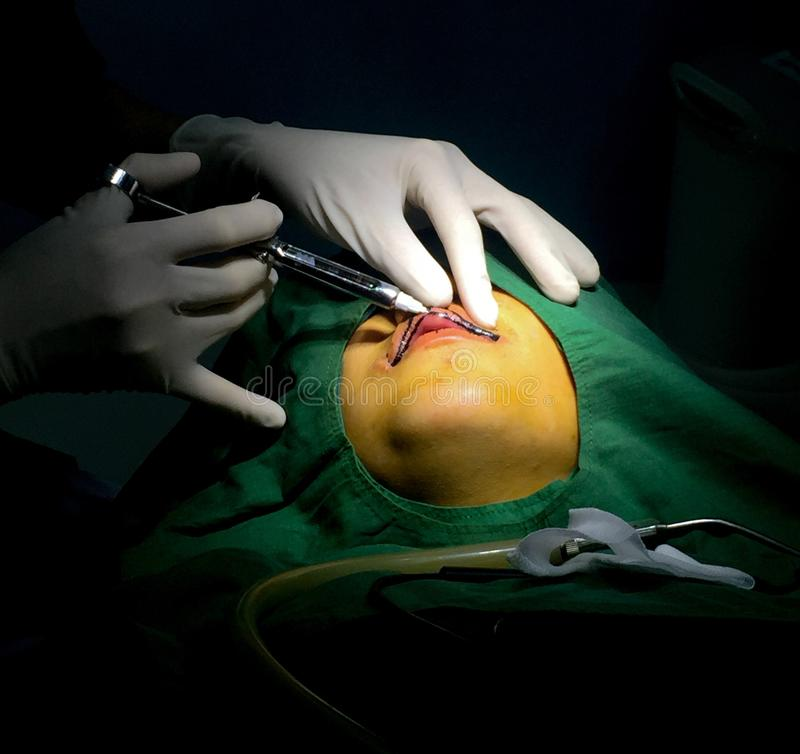 Χειλική χειρουργική επέμβαση στοκ εικόνα με δικαίωμα ελεύθερης χρήσης