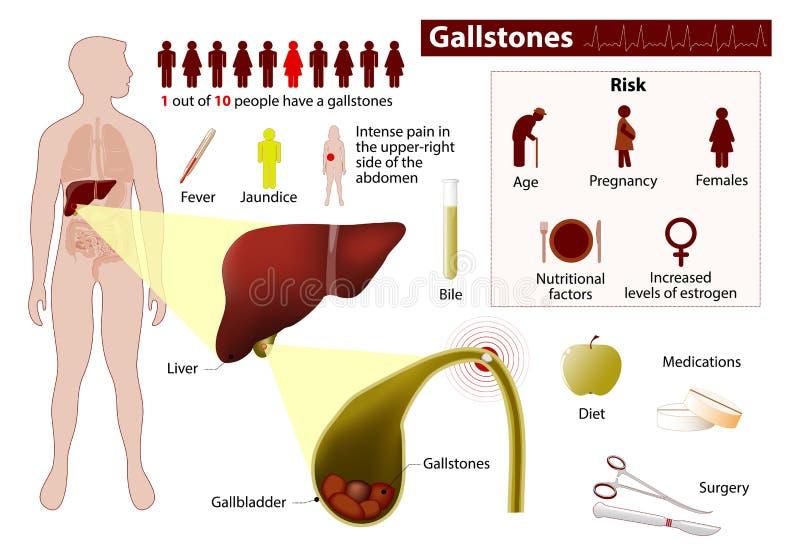 χολόλιθοι Ιατρικός infographic διανυσματική απεικόνιση