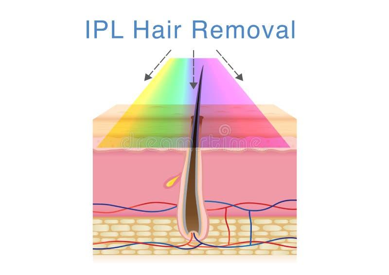 Χρησιμοποίηση IPL του φωτός για την αφαίρεση τρίχας στο ανθρώπινο δέρμα διανυσματική απεικόνιση