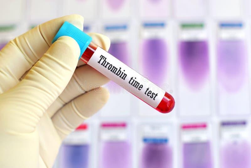 Χρονική δοκιμή θρομβίνης στοκ φωτογραφίες με δικαίωμα ελεύθερης χρήσης