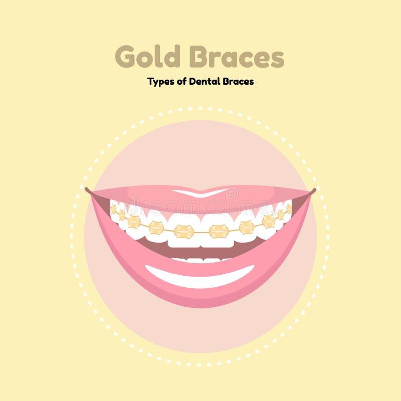 Χρυσά οδοντικά στηρίγματα στοκ εικόνες