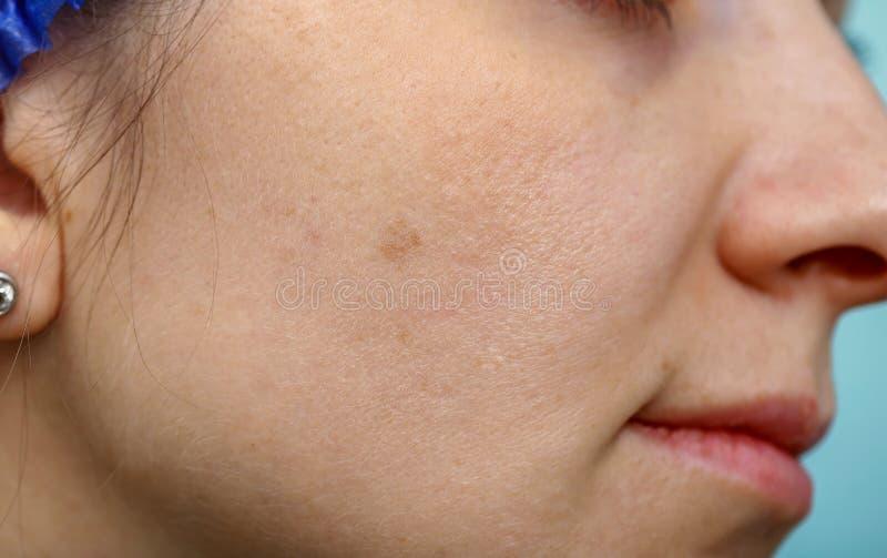 Χρώση στο δέρμα στοκ φωτογραφία