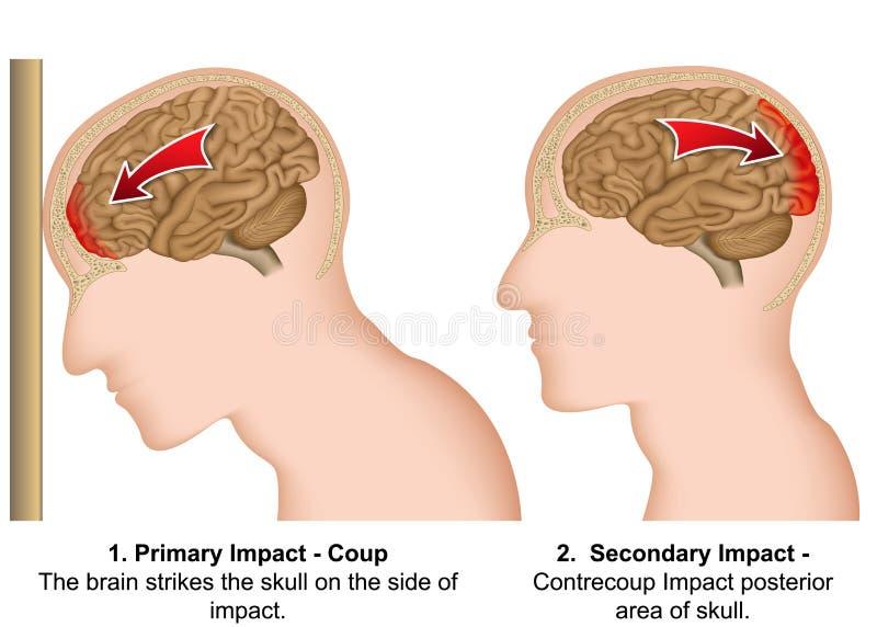Χτύπημα - contrecoup ιατρική απεικόνιση στο άσπρο υπόβαθρο διανυσματική απεικόνιση