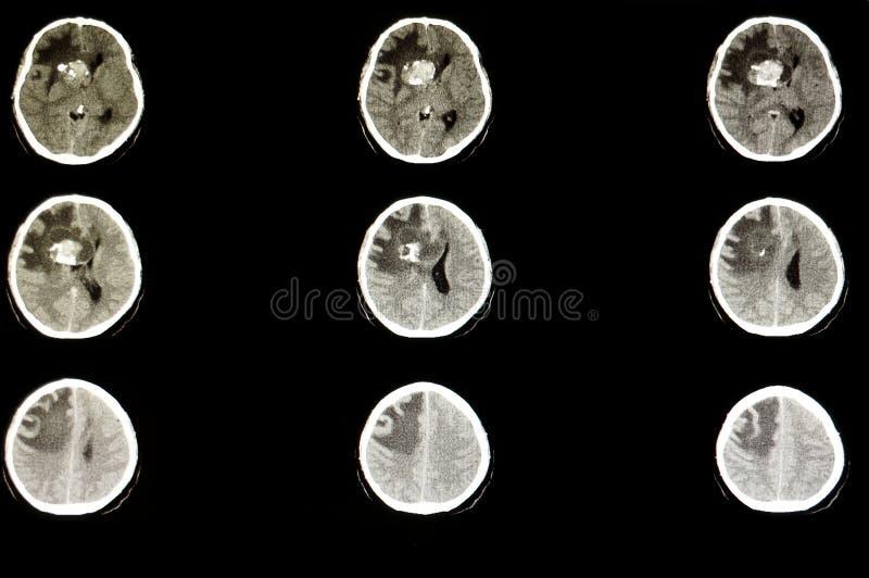 Όγκος στον εγκέφαλο στοκ εικόνες