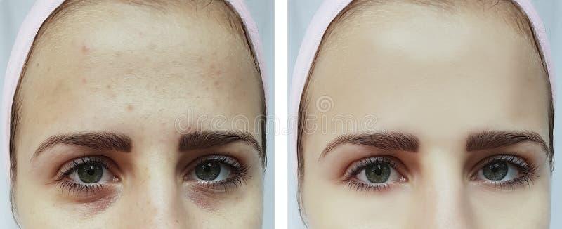 Όμορφη ακμή νέων κοριτσιών, μώλωπες κάτω από τα μάτια πριν και μετά από τις διαδικασίες στοκ φωτογραφίες με δικαίωμα ελεύθερης χρήσης