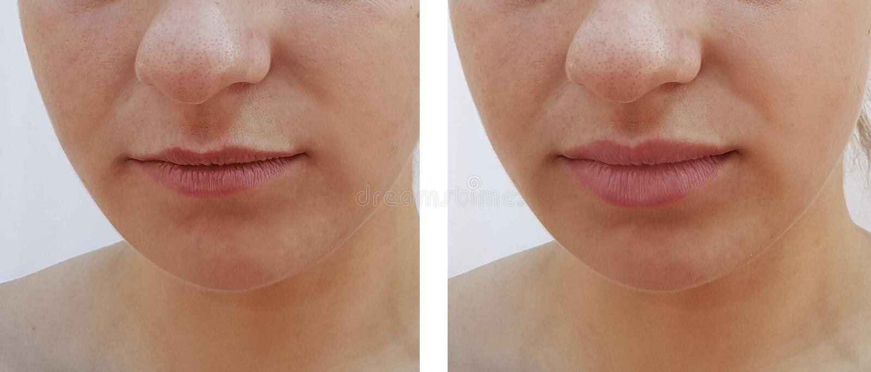 Όμορφη διαφορά χειλικής αύξησης κοριτσιών πριν και μετά από τις διαδικασίες στοκ φωτογραφία με δικαίωμα ελεύθερης χρήσης