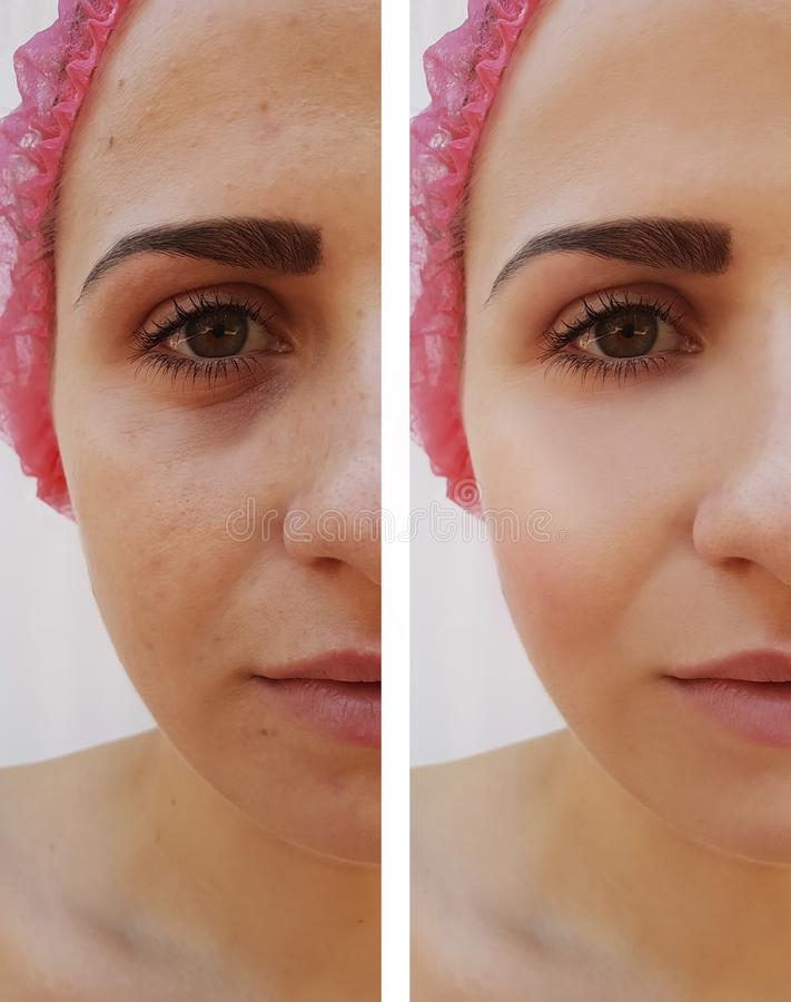 Όμορφη ενυδάτωση διαφοράς επίδρασης χειλικής αύξησης κοριτσιών πριν και μετά από τις διαδικασίες στοκ εικόνα