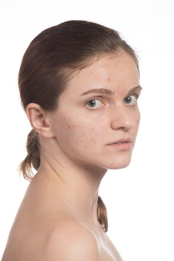 Όμορφο νέο κορίτσι με την κόκκινη και άσπρη ακμή στο πρόσωπό της προτού στοκ φωτογραφίες