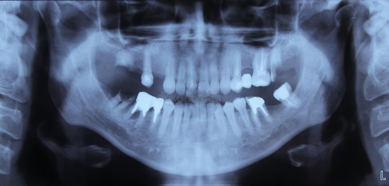 δόντια Χ ακτίνων στοκ φωτογραφίες
