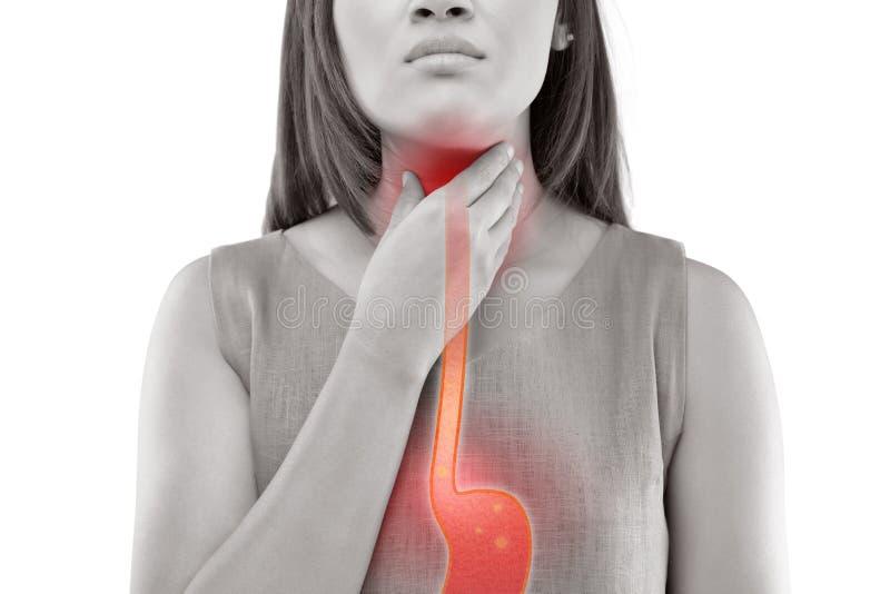 όξινο reflux στοκ εικόνες