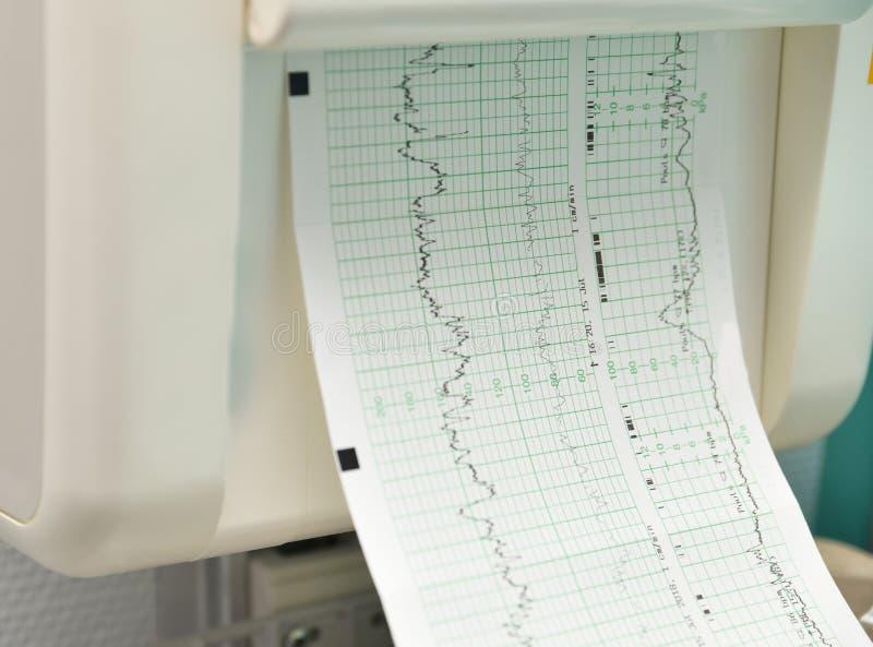 Όργανο ελέγχου για τη μέτρηση των συστολών, κτύπος της καρδιάς μιας εγκύου γυναίκας στοκ φωτογραφίες με δικαίωμα ελεύθερης χρήσης