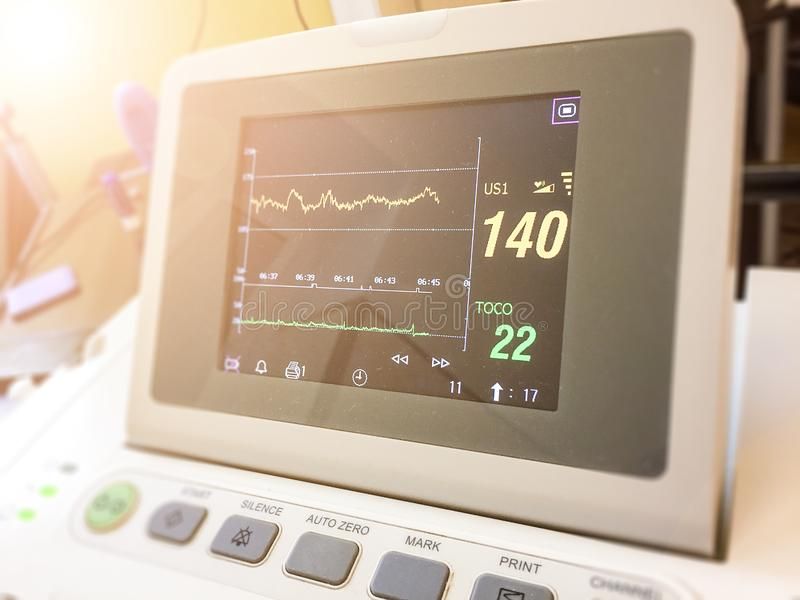 Όργανο ελέγχου οθόνης που μετρά το καρδιακό ποσοστό στοκ εικόνα