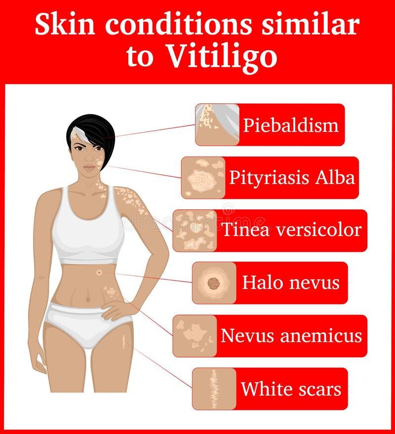 Όροι δερμάτων που έχουν μια εξωτερική ομοιότητα σε Vitiligo απεικόνιση αποθεμάτων