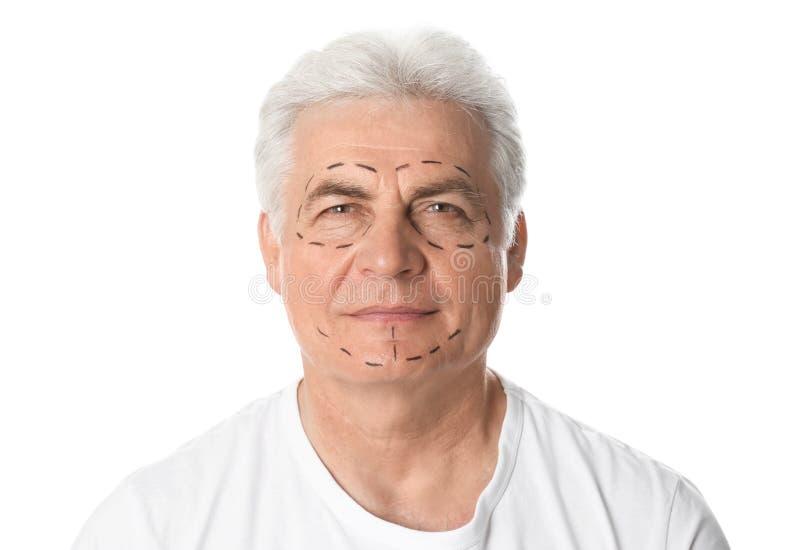 Ώριμο άτομο με τα σημάδια στο πρόσωπο για τη λειτουργία αισθητικής χειρουργικής στοκ εικόνες