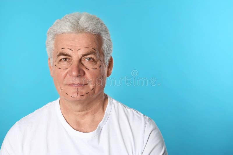 Ώριμο άτομο με τα σημάδια στο πρόσωπο για τη λειτουργία αισθητικής χειρουργικής στο μπλε κλίμα στοκ εικόνα με δικαίωμα ελεύθερης χρήσης