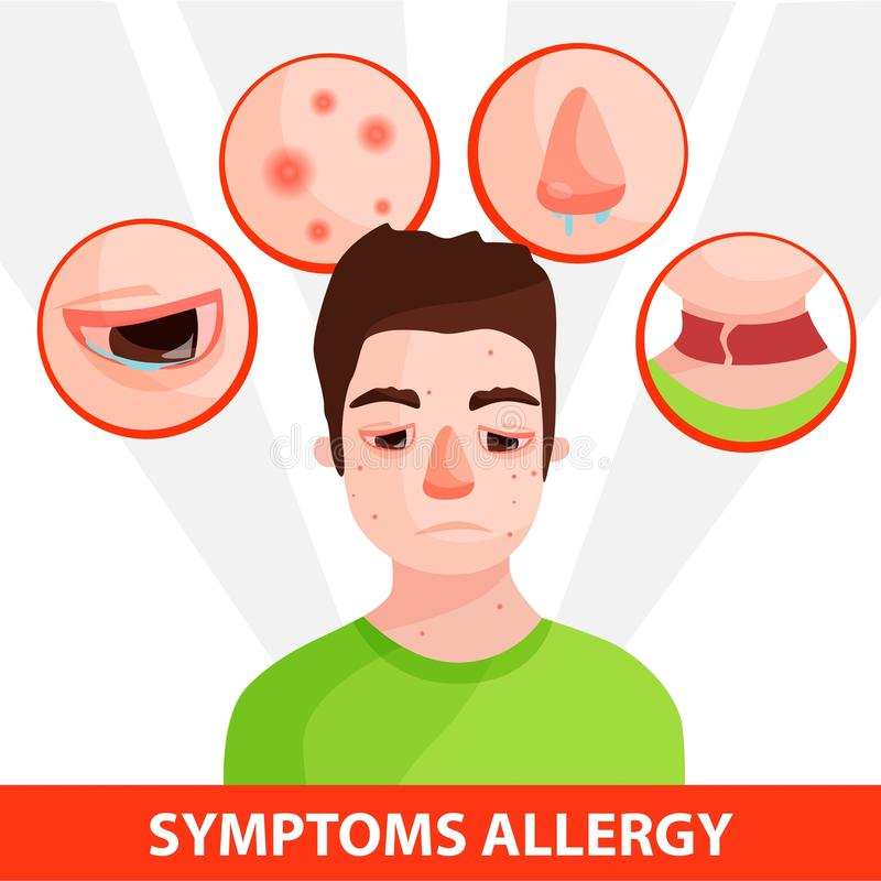 Аллергия infographic иллюстрация штока