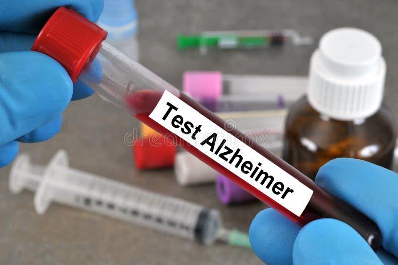 Анализ крови для скрининга alzheimer стоковые фотографии rf