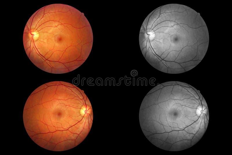Анатомия человеческого глаза, сетчатка, артерия оптического диска и вена etc стоковая фотография