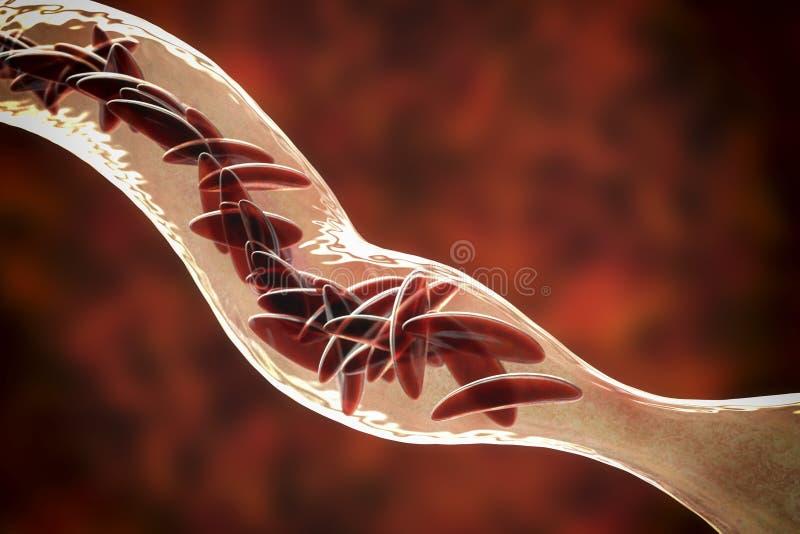 Анемия серповидного эритроцита иллюстрация вектора