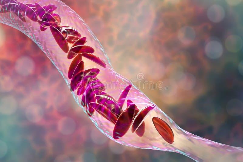 Анемия серповидного эритроцита бесплатная иллюстрация