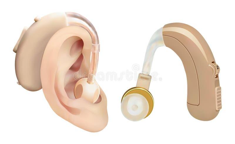 Аппарат для тугоухих за ухом Ядровый усилитель для пациентов с потерей слуха Обработка и протезирование в оториноларингологии иллюстрация вектора