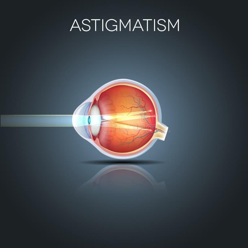 Астигматизм, запачканное vission бесплатная иллюстрация