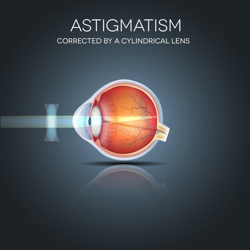 Астигматизм исправленный цилиндрическим объективом иллюстрация вектора