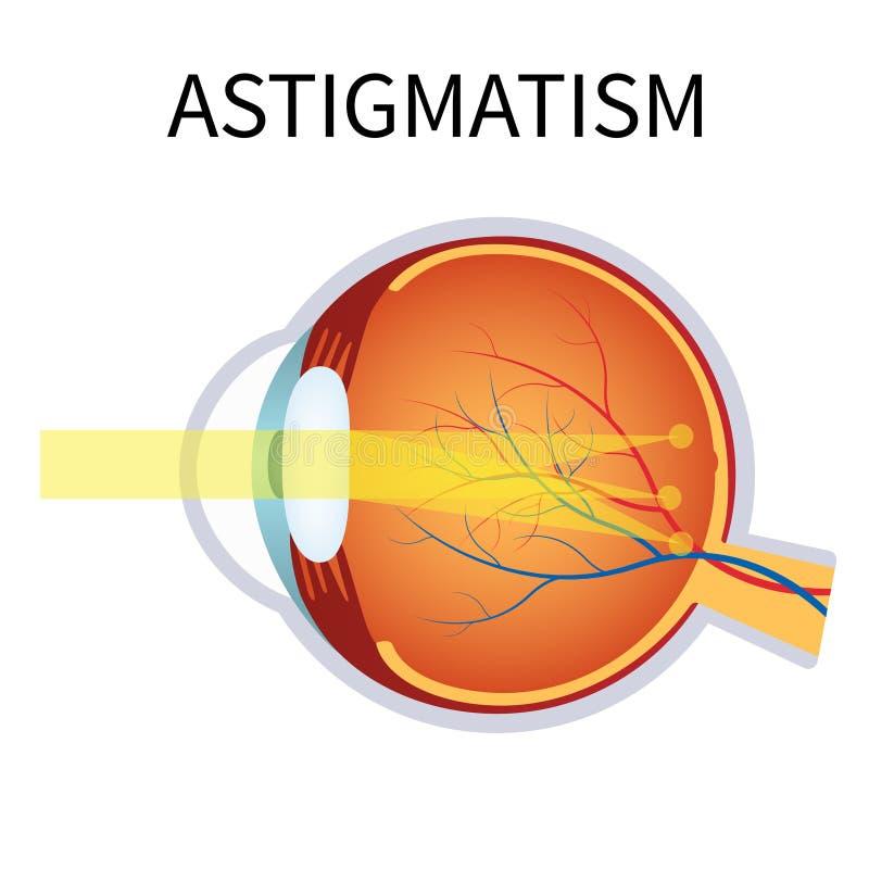 астигматизм Проблема зрения, запачканное зрение иллюстрация вектора