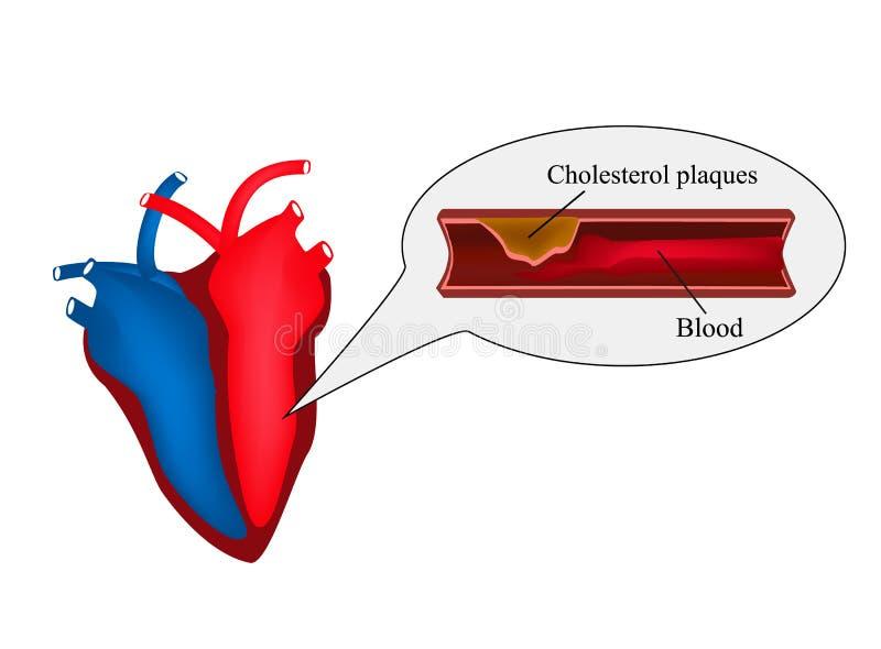 Атеросклероз сердца Грудная жаба Сердечная болезнь День сердца мира Иллюстрация вектора на изолированной предпосылке иллюстрация вектора