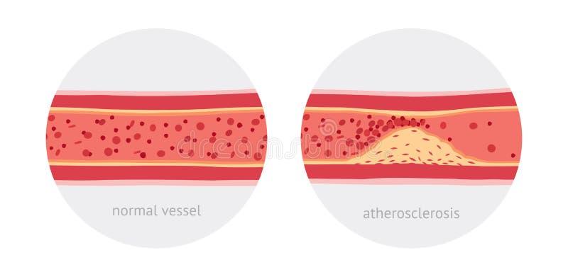 Атеросклероз в сосудах иллюстрация вектора