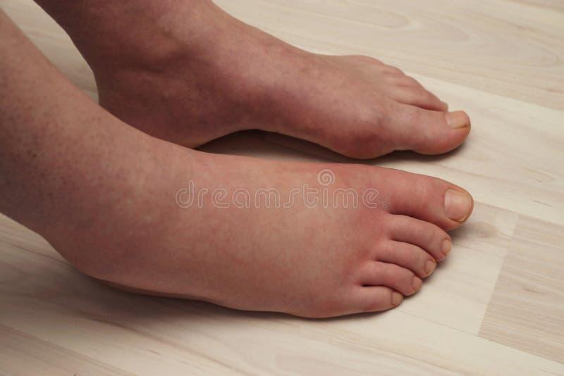 Аллергическая реакция на ноге стоковая фотография rf