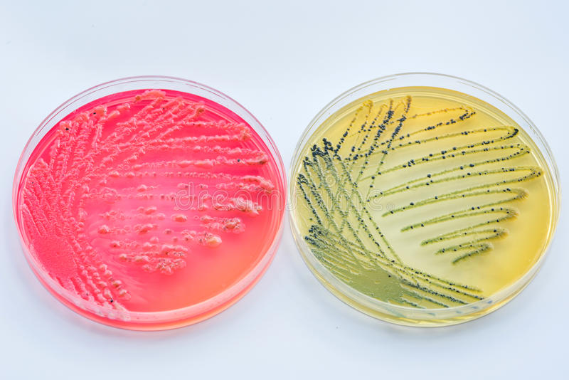 Бактериальная культура колоний на дифференциальных и селективных средствах массовой информации стоковая фотография