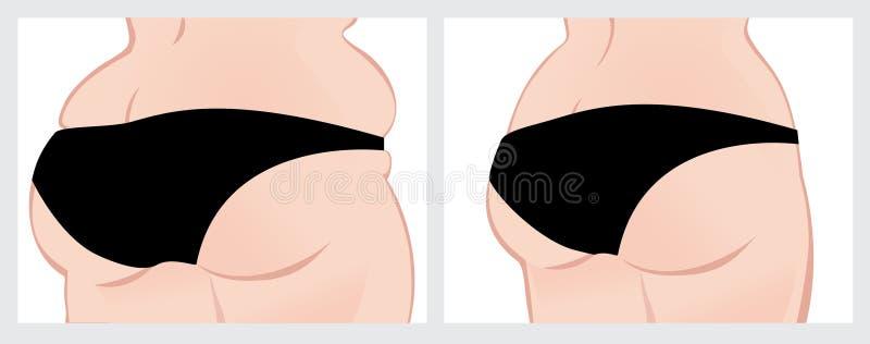 Батокс перед и после потерей веса стоковое изображение