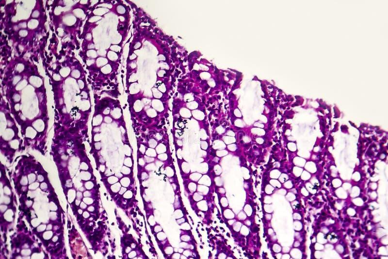 Бациллярная дизентерия, светлый микрорисунок стоковое фото