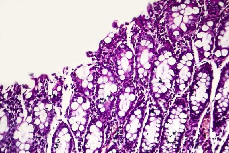 Бациллярная дизентерия, светлый микрорисунок стоковые изображения rf