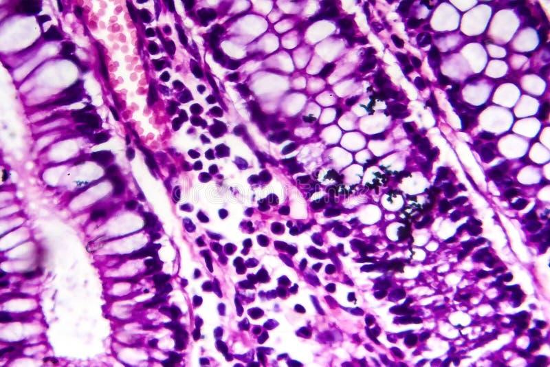 Бациллярная дизентерия, светлый микрорисунок стоковые изображения